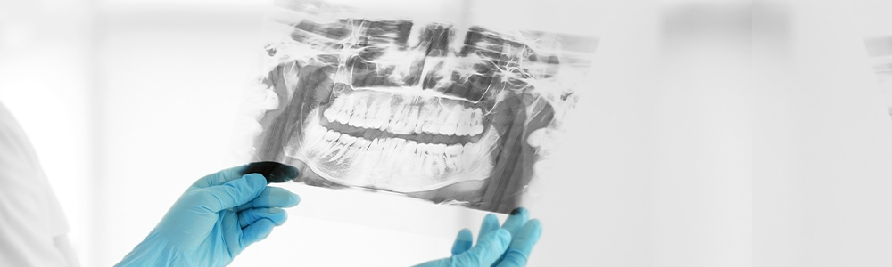 How does a bone graft work?